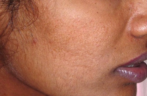 Mountain Edge Skin Boutique Before-After 02A