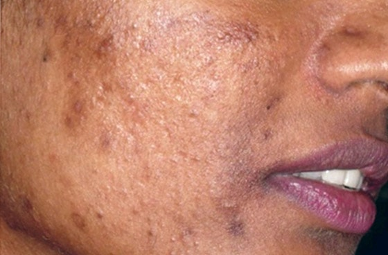 Mountain Edge Skin Boutique Before-After 02B