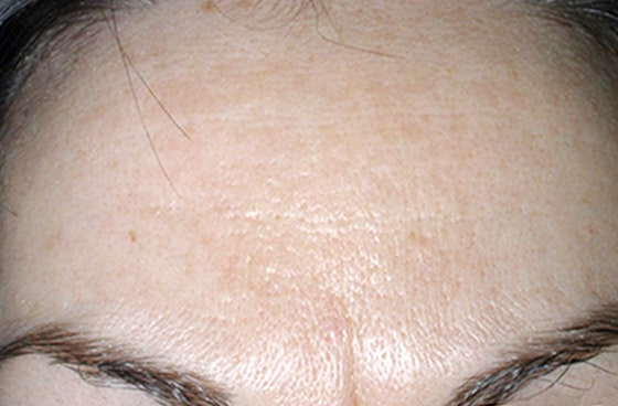 Mountain Edge Skin Boutique Before-After 05A