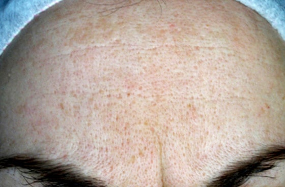 Mountain Edge Skin Boutique Before-After 05B