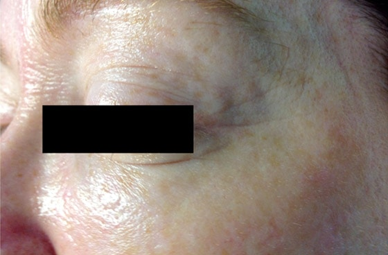 Mountain Edge Skin Boutique Before-After 07A