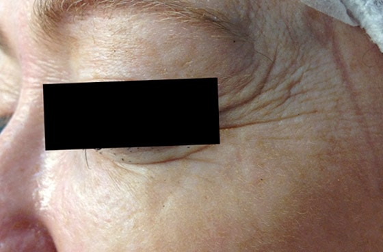 Mountain Edge Skin Boutique Before-After 07B