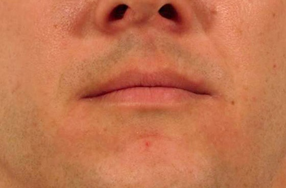 Mountain Edge Skin Boutique Before-After 09B