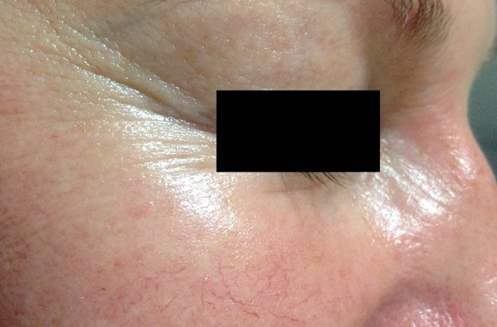 Mountain Edge Skin Boutique Before-After 10A