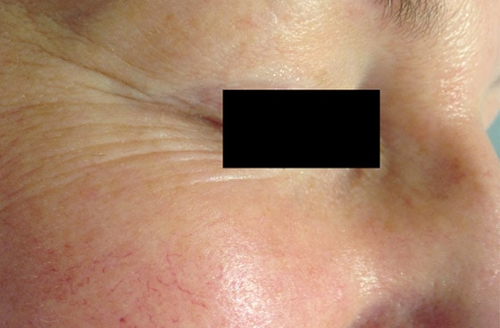 Mountain Edge Skin Boutique Before-After 10B