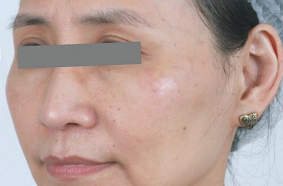 Mountain Edge Skin Boutique Before-After 11A